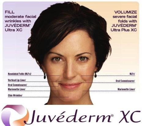 Juvederm Dermal Facial Fillers Clinton Township, MI |