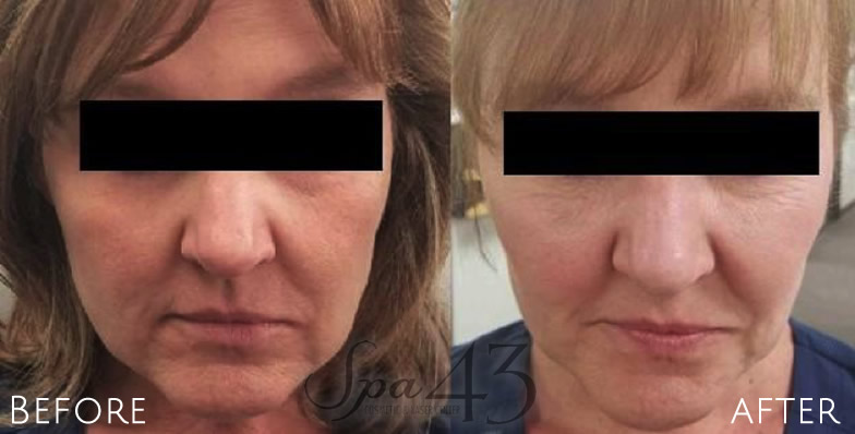 Juvederm Dermal Facial Fillers Clinton Township, MI |
